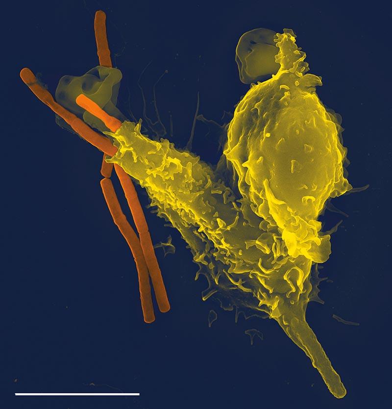 Klik for at forstørre. Billede taget af Volker Brinkmann med et elektron mikroskop viser en ædecelle æde en bakterie (orange).