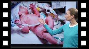 Graviditet og fødsel.